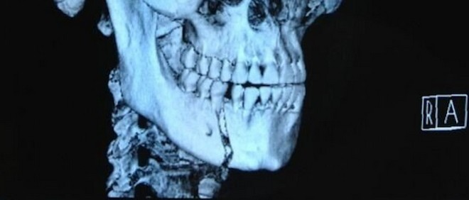 fighter-broken-jaw