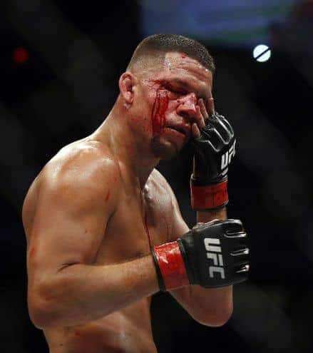 Nate Diaz wipes blood from his eyes during his welterweight mixed martial arts bout against Conor McGregor at UFC 202 on Saturday, Aug. 20, 2016, in Las Vegas.  McGregor won by split decision. (AP Photo/Isaac Brekken)