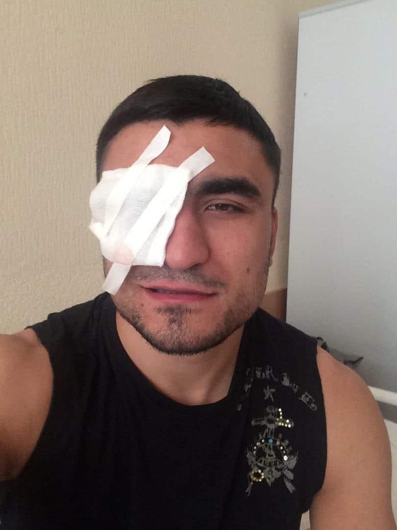 Колобегов травма глаза